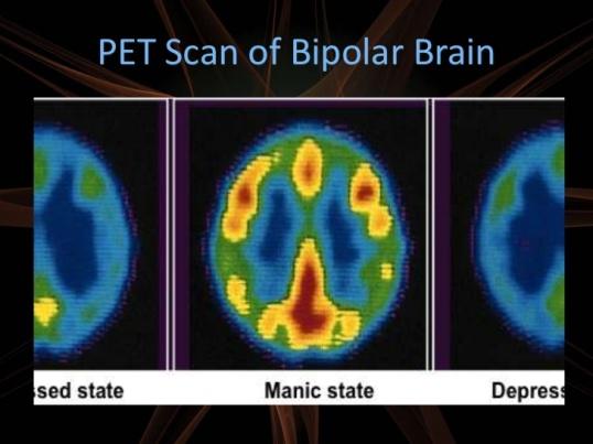 when-the-brain-dies-first-16-728